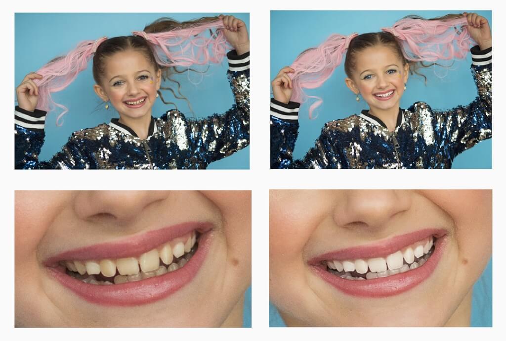 como blanquear los dientes en photoshop